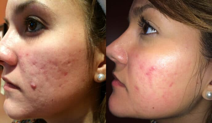 Acne-Scar-Before-before_after