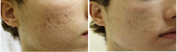 Acne Scar Before and After Photo