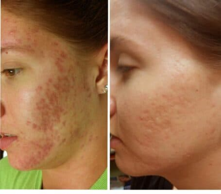 Acne Scar Therapy : Omaha Med Spa