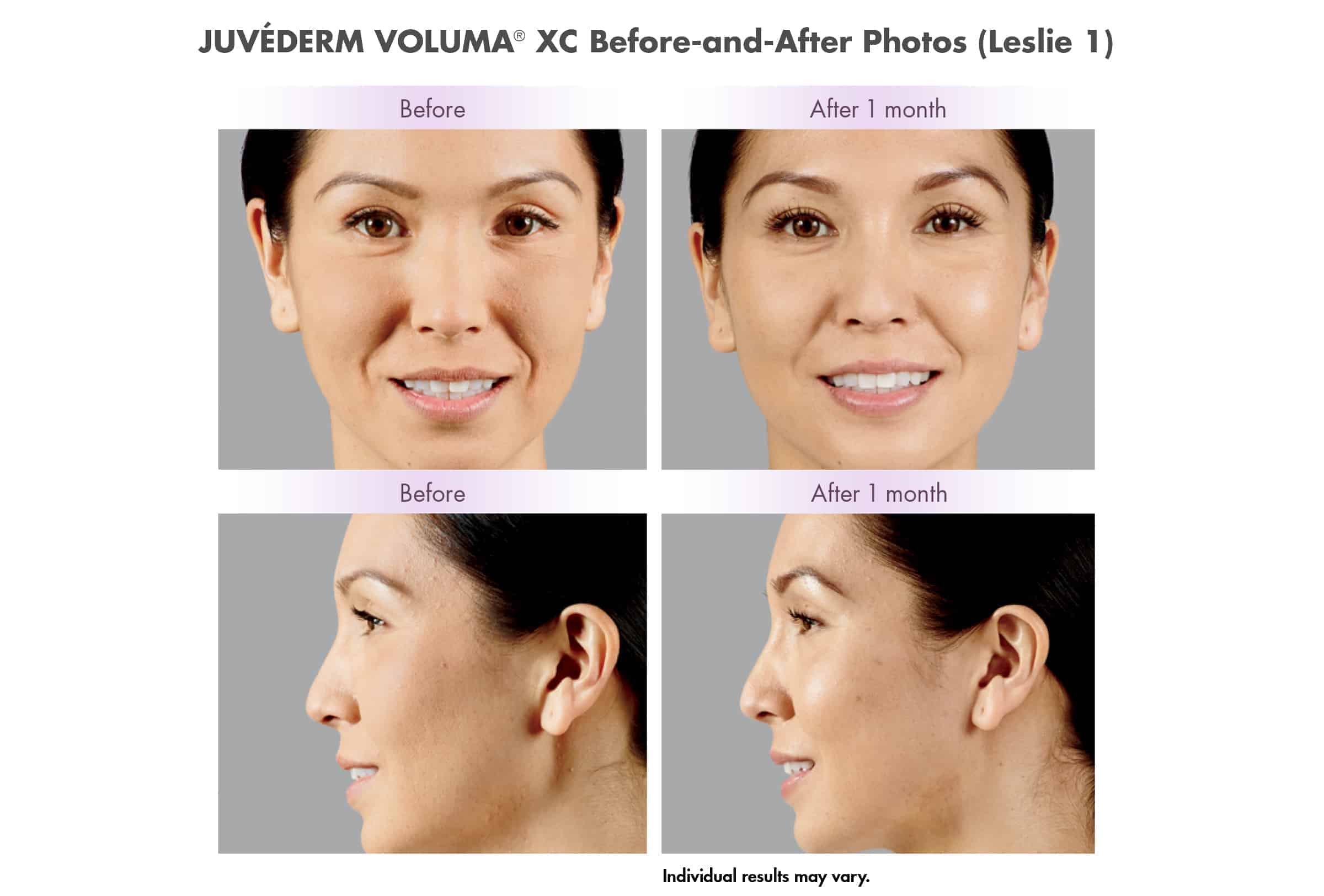 Juvederm Voluma XC Before & After Photos
