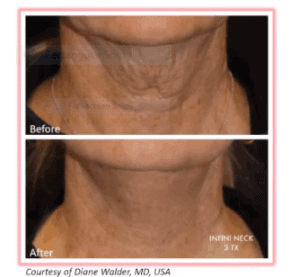 RF Genius to tighten neck skin