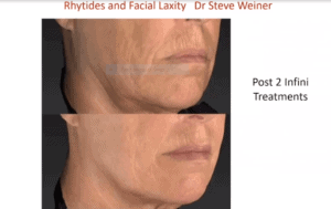 Male Face and Neck treated with Genius