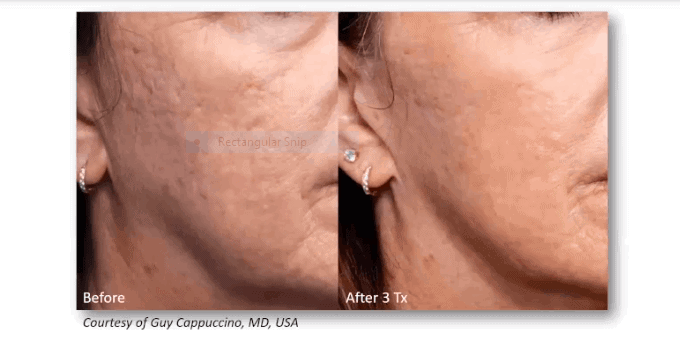 acne scars cheek before and after treatment Genius