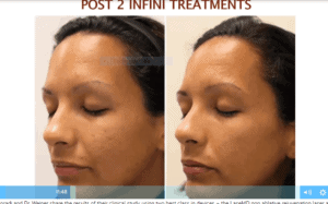 Before and after RF microneedling for acne scars