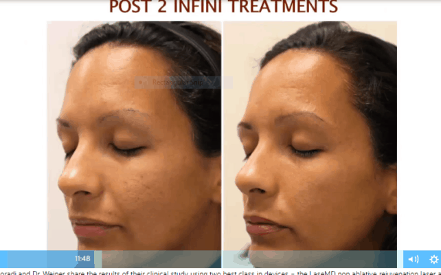 Before and after Genius RF microneedling for acne scars