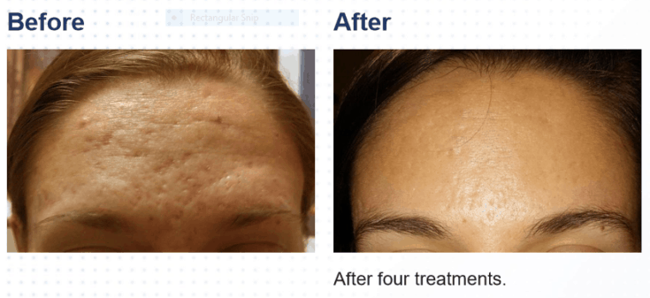 Acne scars before and after SkinPen