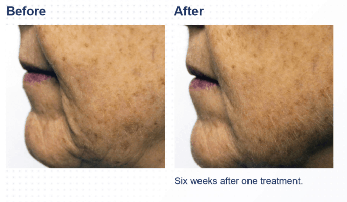 SkinPen microneedling for brown pigment age sun spots