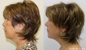 Evoke neck and chin
