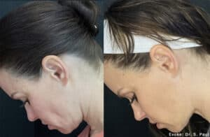 Before and after images neck profile