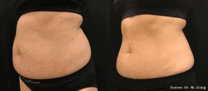 Evolve abdomen