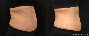 before and after Evolve abdomen
