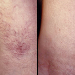 before and  after sclerotherapy