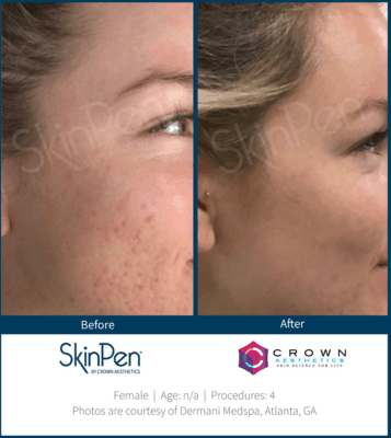 SkinPen microneedling before and after pictures in patient with acne scars