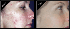 Before and after IPL for inflammatory acne