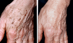 Age spots on the hand before and after IPL