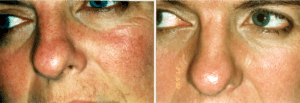 Clarion IPL before and after Rosacea Treatment