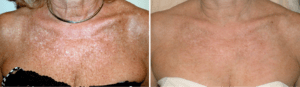 Sun damage upper chest before and after IPL